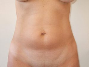 mini tummy tuck patient