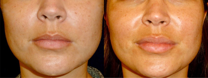 dermal fillers before an after