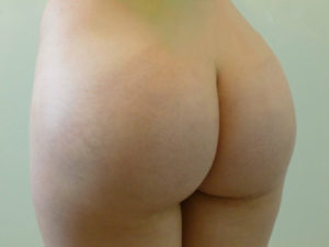 brazilian butt lift patient
