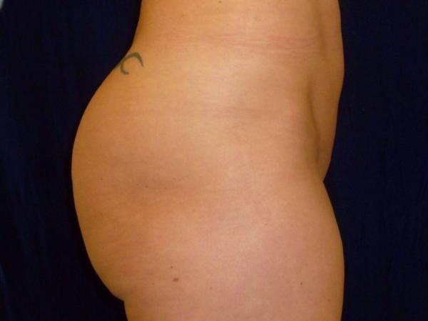 brazilian butt lift patient