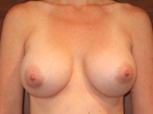 breast asymmetry patient