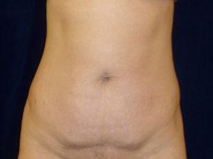 Liposuction patient