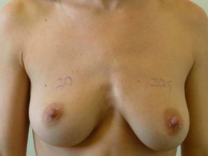 nonsurgical breast lift patient