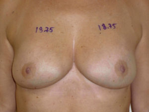 nonsurgical skin tightening for body patient