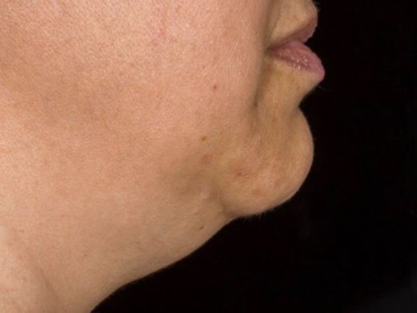 nonsurgical skin tightening for face patient