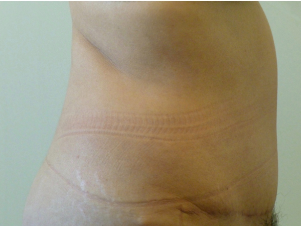 tummy tuck patient
