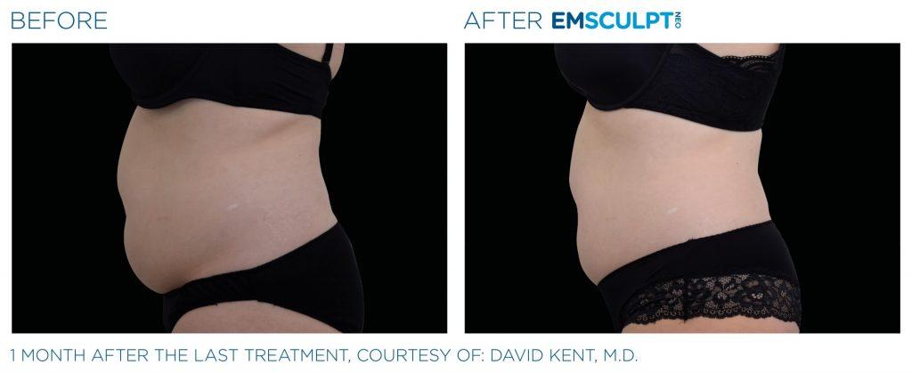 Emsculpt_neo_PIC_Ba-card-female-abdomen-020_ENUS100-min
