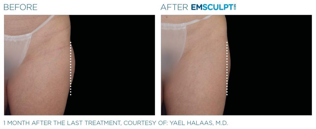 Emsculpt_neo_PIC_Ba-card-female-outer_thighs-055_ENUS100-min